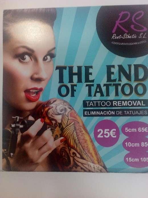 Imagen Eliminación de tatuajes