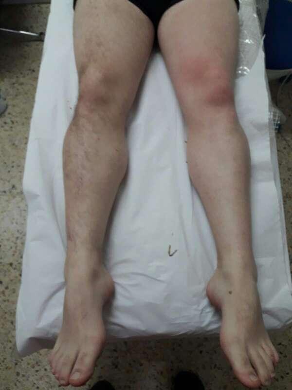 Imagen producto Depilación de piernas para hombre 1