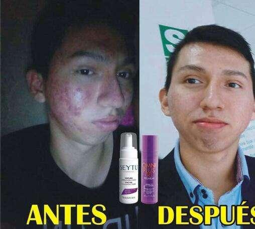 Imagen elimina el acné para siempre