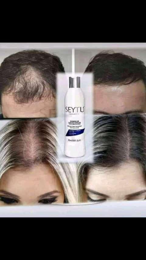 Imagen Evita la caida del cabello