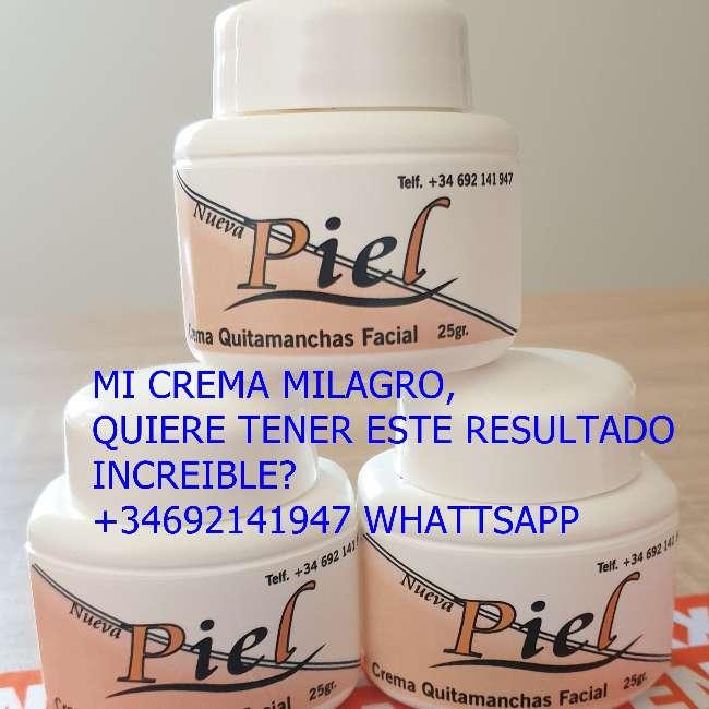 Imagen producto Crema quita manchas 1