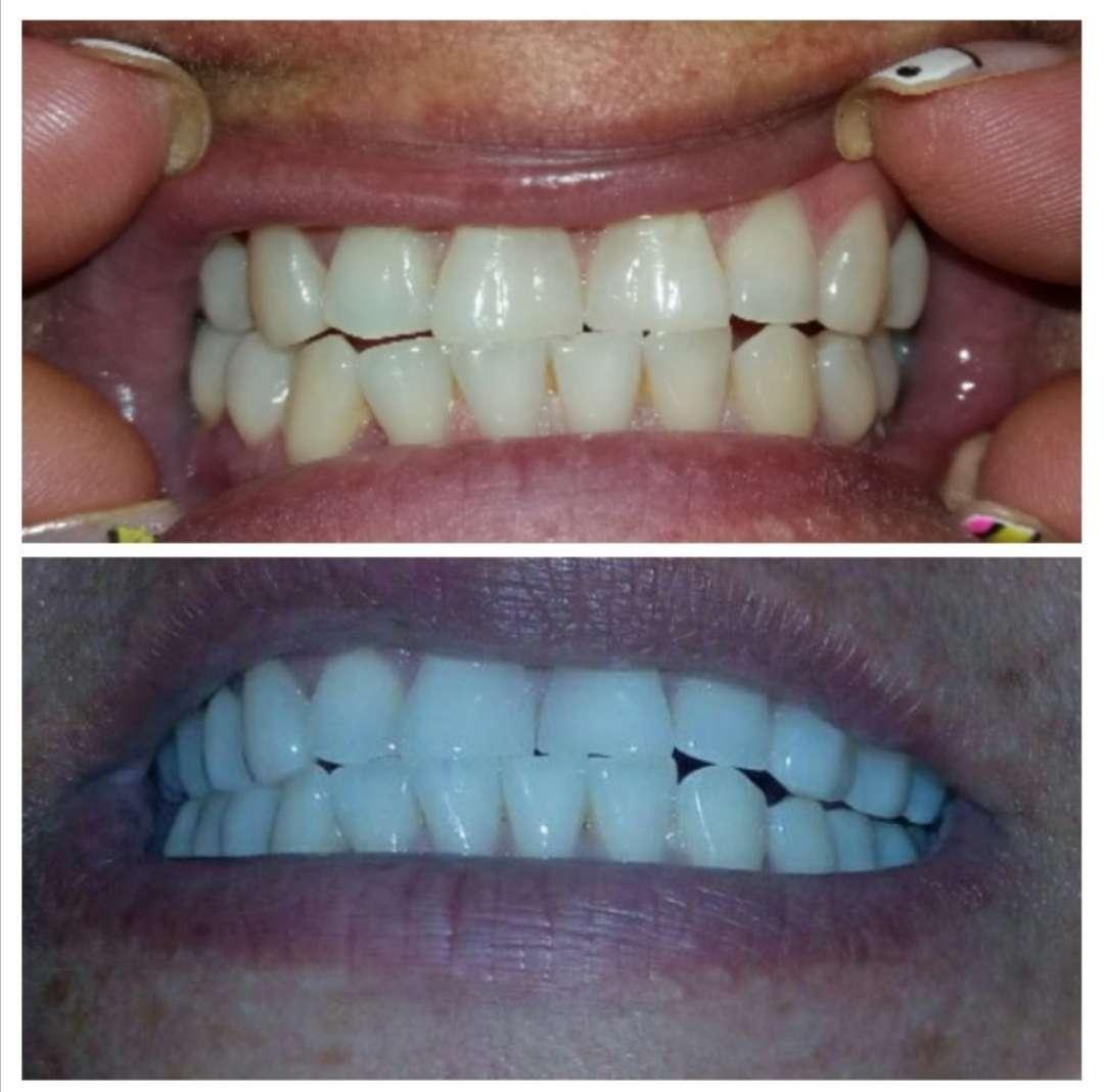 Imagen producto Servicio de laboratorio dental 2
