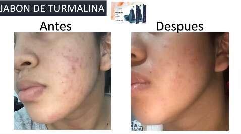 Imagen producto Jabón TOURMALINE SOAP de HGW 5